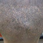 自毛が濃く、傷が目立ちます。・ヘアタトゥー画像