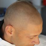 生え際から頭頂部にかけてのドットの濃淡と大きさの違いのグラデーション・ヘアタトゥー画像