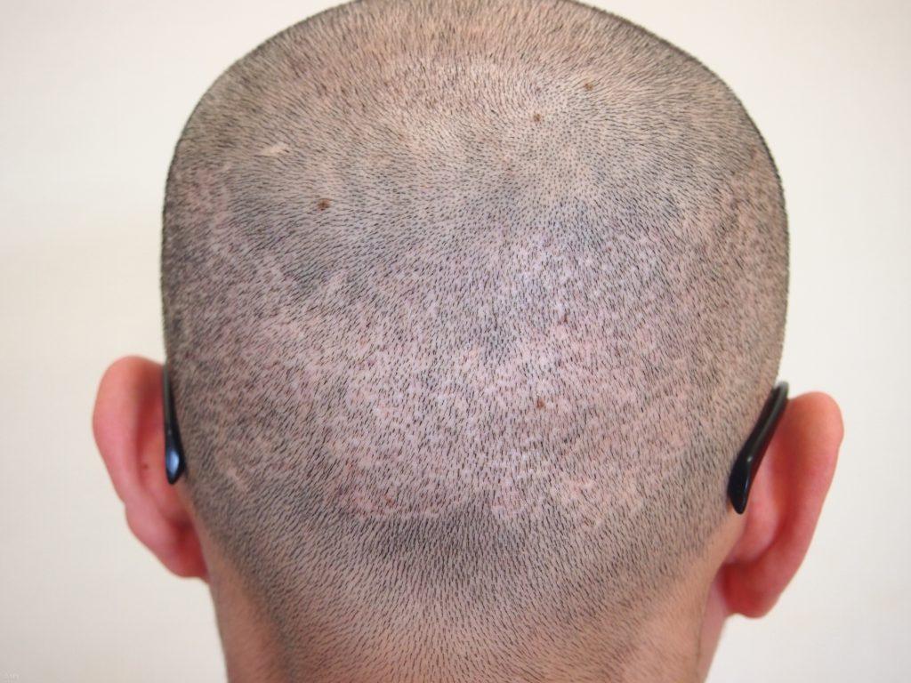 植毛FUE法で出来た後頭部の虫食い