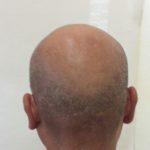 後頭部の既存毛は濃いので、境目が気になります。このタイプの薄毛の方は、このU字が嫌と言う方が多いです。・ヘアタトゥー画像