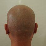 2回目から3週間後の後頭部です。2回で結構カバーできました。・ヘアタトゥー画像