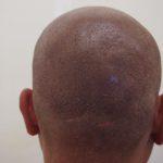後頭部の肌感をもう少し埋めて、完成です。・ヘアタトゥー画像