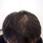 (before)  しっかり整えても 頭頂部が気になります。・ヘアタトゥー画像