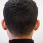 完成。FUT傷も自毛がこの長さなら、ほとんど目立ちません。(傷の幅によります)・ヘアタトゥー画像
