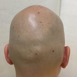 ビフォーです。剃ってカバーされていますが、頭頂部の薄さが見受けられます。・ヘアタトゥー画像