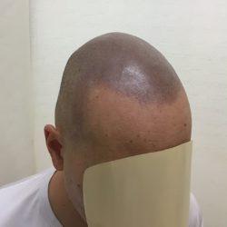 施術直後の写真なので少し濃い感じですが、実際はもう少し薄く、12時間後の自毛感にも合っていると思います。・ヘアタトゥー画像