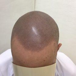 自毛を剃って12時間くらい経った状態で来院していただき、それに合わせたトリートメントを施します。完成です。・ヘアタトゥー画像