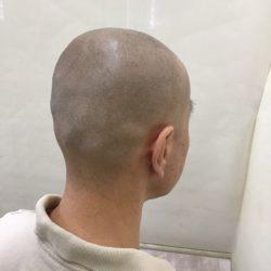 施術直後の写真ですが、自毛との感じと合ったと思います。・ヘアタトゥー画像