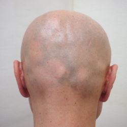 ビフォー。後頭部は自毛が強いので、円形脱毛がはっきりわかります。・ヘアタトゥー画像