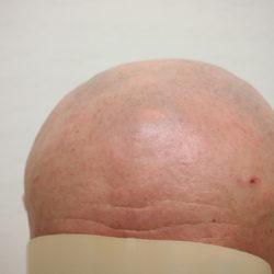 円形脱毛症 全頭型