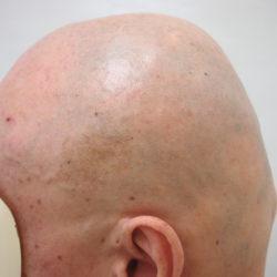ビフォー。耳上~後頭部に少し自毛が残っていますね。・ヘアタトゥー画像