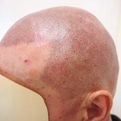 2回施術時です。初回の定着を見て、薄いインクで全頭を施術することにしました。 (直後の写真なので濃さはわかりませんね)・ヘアタトゥー画像