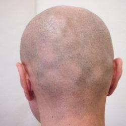 2回終了時です。襟足の感じは現れましたが、円形脱毛部はドット数が足りていないので脱毛感が見えていますね。・ヘアタトゥー画像