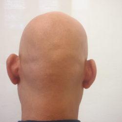 ビフォー  後頭部も無毛状態です。・ヘアタトゥー画像