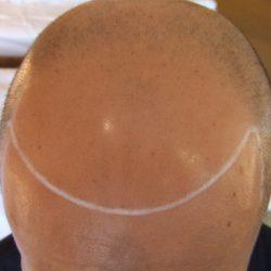 頭部全体が薄毛でレベル6です。・ヘアタトゥー画像
