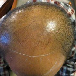 6年経過した人の頭部写真