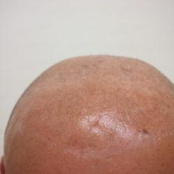 レベル6の薄毛でした。(写真は保湿剤を塗ってあるので、少しテカリがあります)・ヘアタトゥー画像