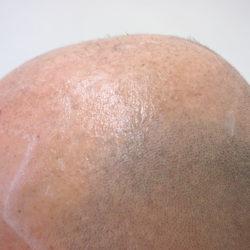 ビフォーです。サイドの髪も少ないので、ここも多めにカバーが必要ですね。・ヘアタトゥー画像