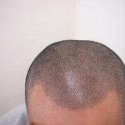 2回目直後の写真です。自毛の太い黒髪に合わせるために(2mmボウズ)、通常より少し濃いドットにしまいた。