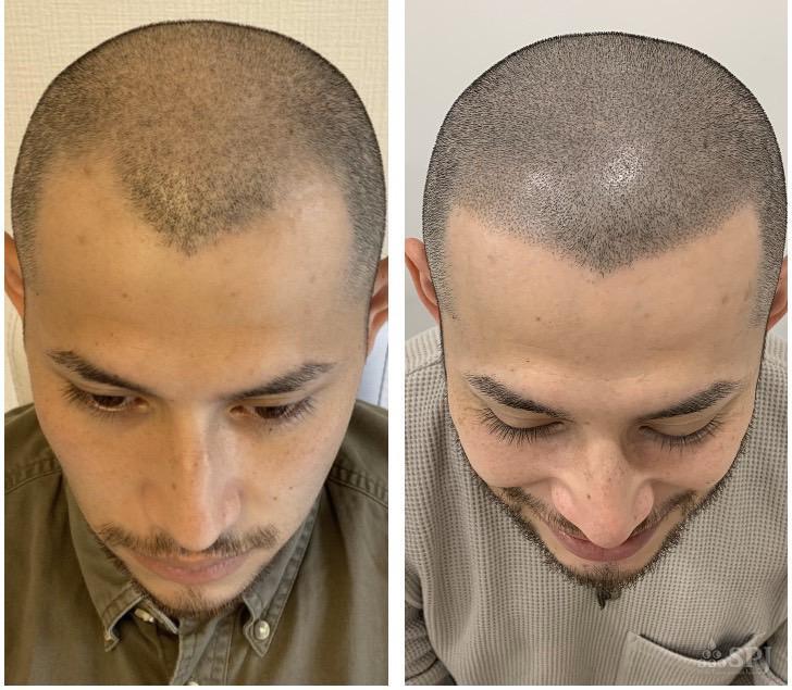 左がヘアタトゥー施術前、右がヘアタトゥー施術後