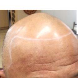 フロント~頭頂部にかけて薄毛が広がっている、レベル5~6の方です。サイドも殆どありません。・ヘアタトゥー画像